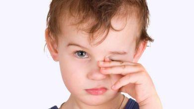 صورة إليك  علاج جفاف العين عند الأطفال في المنزل