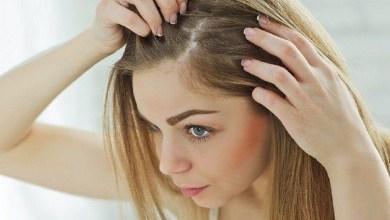 صورة 4 خطوات للتخلص من مشكلة قشرة الشعر