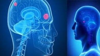 صورة إصابة مخرج شهير بورم في المخ
