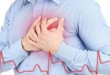 صورة الذبحة الصدرية.. الأسباب والأعراض وطرق الوقاية