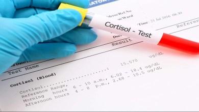 صورة نقص هرمون الكورتيزول يؤدي للإصابة بمرض أديسون