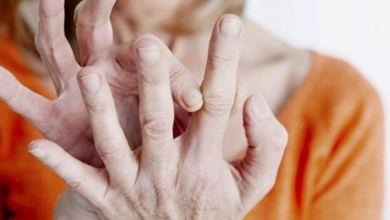 صورة علامة غريبة على الأصبع تدل على الإصابة بالسرطان!