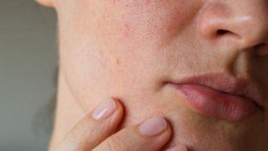 صورة وصفات طبيعية فعالة لسد مسام الوجه