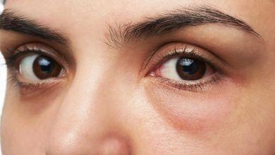 صورة 5 نصائح لإخفاء انتفاخات العيون