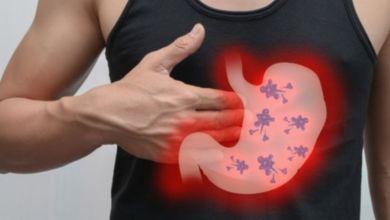 صورة أنواع تحاليل الكشف عن الإصابة بجرثومة المعدة