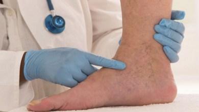 صورة أمراض تؤدي إلى انتفاخ القدمين