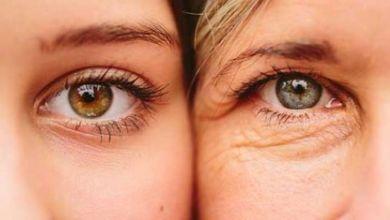 صورة كيف يمكن إزالة التجاعيد تحت العين؟
