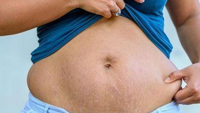 صورة نصائح للتخلص من الكرش بعد الولادة