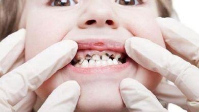 صورة أسباب تآكل الأسنان عند الأطفال وأعراضه وطرق الوقاية