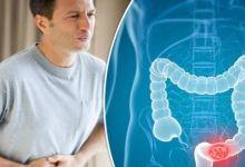 صورة علامتان تنذران بخطر للإصابة بسرطان القولون