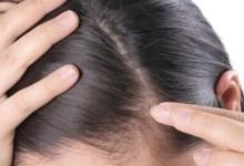 صورة ملف شامل.. نصائح ووصفات طبيعية لتعزيز نمو بصيلات الشعر