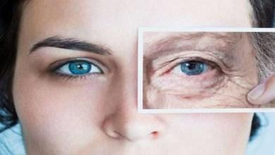 صورة طريقة التخلص من تجاعيد العين بشكل نهائي