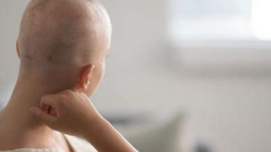 صورة عارض جديد يكشف الإصابة بأخطر أنواع السرطان