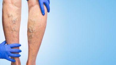 صورة علاجات طبيعية للتخلص من الدوالي