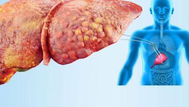 صورة علاجات سريعة  للكبد الدهني.. جربيها بنفسك