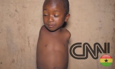Meet The 5-Years-Old Boy Who Was Born With No Arms