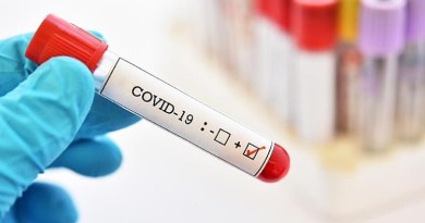A vaccine against COVID-19 is likely by end September 2020. For the following reasons: