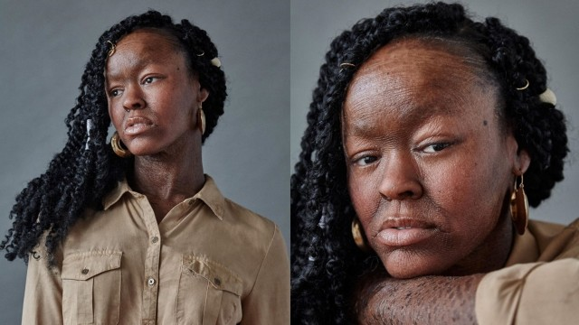 Meet Jeyza Gary, the model with rare skin condition breaking boundaries