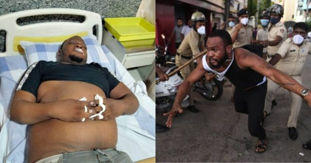 A Congolese Man died in India (bangalore) after his Arrest by Police officials