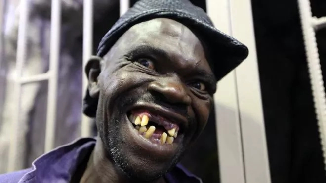 OMG: Zimbabwe Set To Hold Mr Ugly Pageant And You Have To See Some of The Contestants (+Photos/Video)