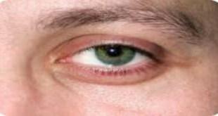 علاج التهاب جفن العين العلوي