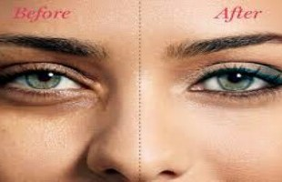 علاج الهالات السوداء تحت العين