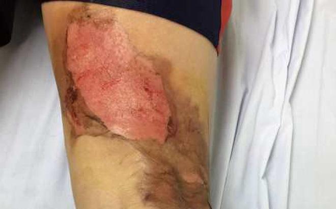 Đắp cao lá vối chữa bỏng, một phụ nữ hoại tử chân, chảy mủ ở vết bỏng