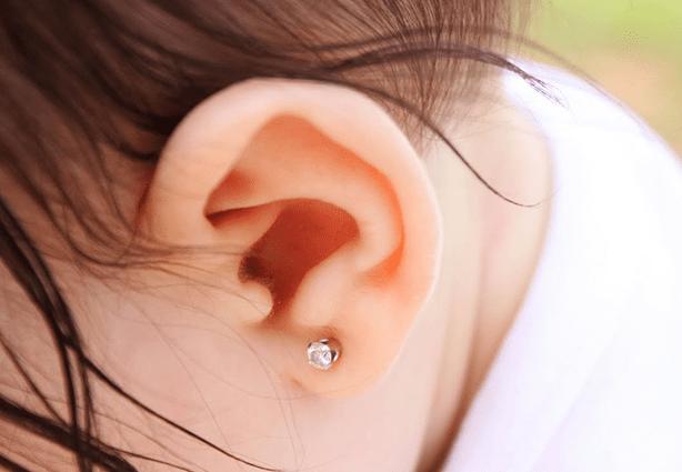 Como a orelha ainda não está completamente formada, porque o nenê está em fase de desenvolvimento do corpo, é possível corrigi-la por meio de um molde de silicone