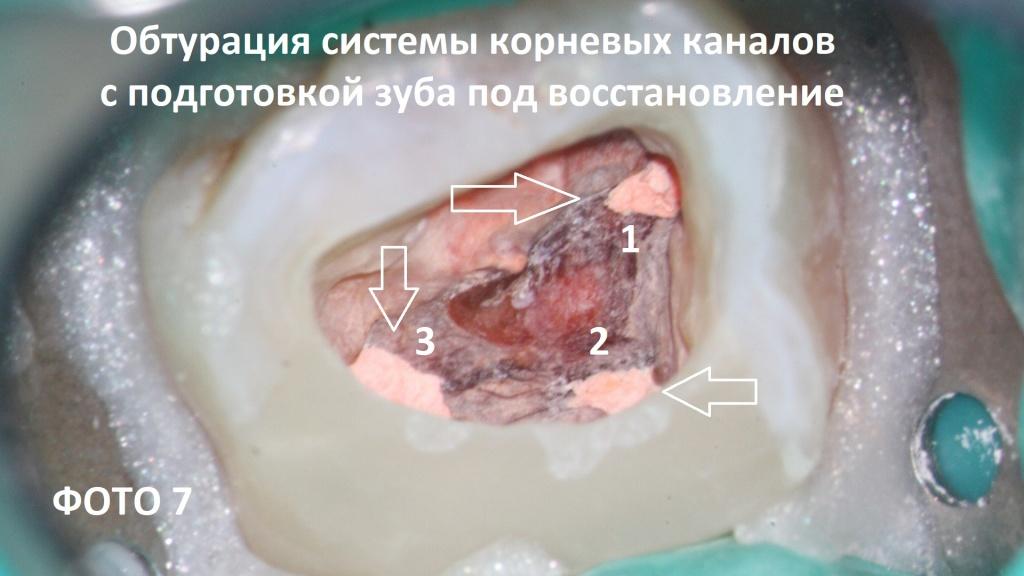 Pagkatapos ng tagal ng sistema ng root canal sa pamamagitan ng paraan ng vertical condensation ng hot guttapers