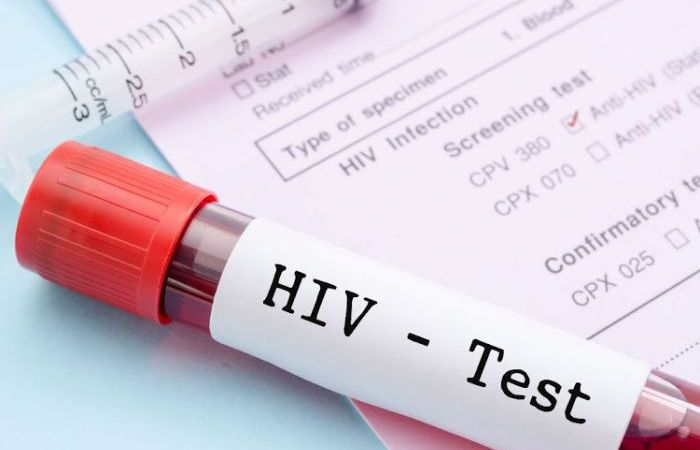 41% Of Nigerians Living With HIV — Report
