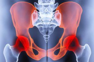 Как умирают от метастазов в костях. Как узнать, что есть метастазы в костях: симптомы