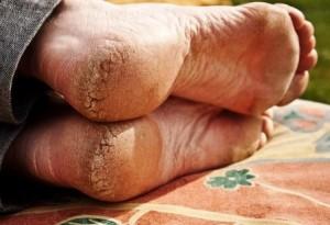 Кератодермия лечение народными средствами
