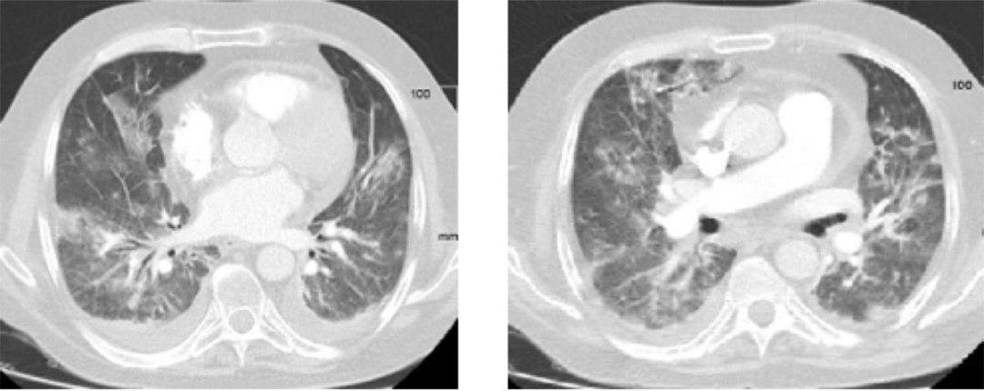 Figura 1. La parte superior muestra el PET-TAC de reevaluación de enero 2017 en el que se objetiva respuesta metabólica con respecto al PET-TAC inicial de septiembre 2016 situado en la parte inferior de la imagen.