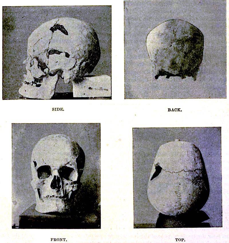 pharaoh_sanakht_skull