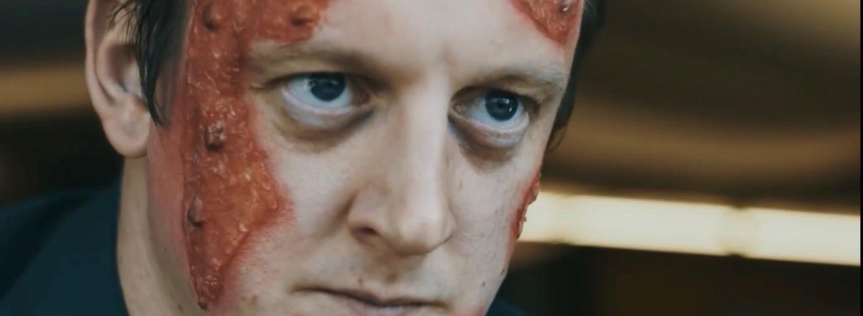 Chris Flood Dead Skin