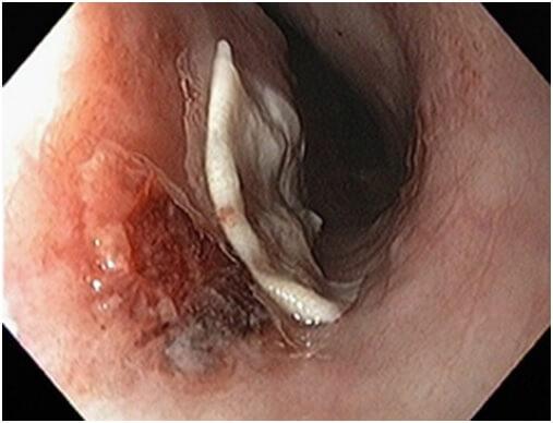 Инородное тело в ЖКТ. Эзофагогастродуоденоскопия