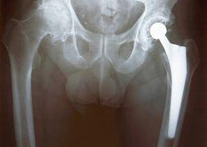 Рентгеновский снимок тазобедренного сустава собаки с протезом.