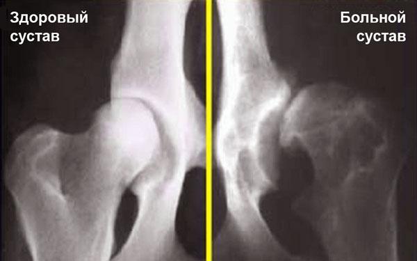 Пример рентгеновских снимков здорового тазобедренного сустава (слева) и ТБС с дисплазией (справа).