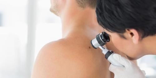 Dra. Gina Matzenbacher - Dermatologia - Biópsia de Pele