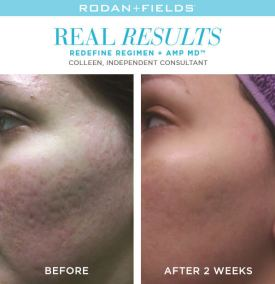 redefine real results coleen