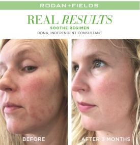 redefine real results dona