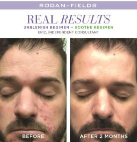 redefine real results eric