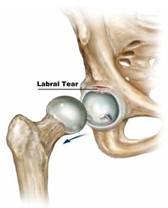 Extra-Articular Pelvic and Hip Labrum Injury: Ginger teaching new course in Akron, OH in June