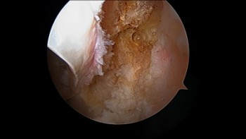 Extra-articular Hip Impingement: A New Discovery in Hip Preservation