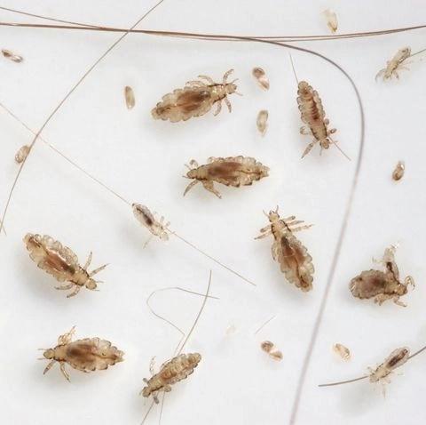 Head lice and nits.