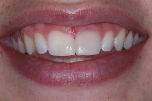cosmetic after - Cosmetic Dentistry