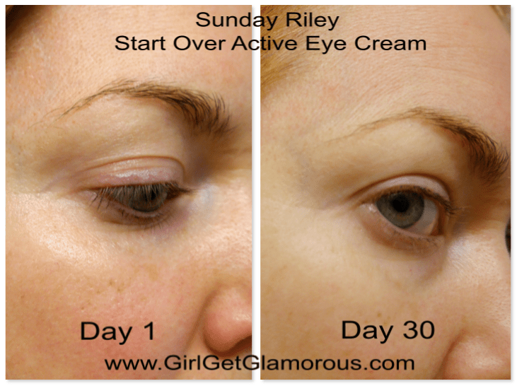 sunday-riley-start-over-eye-cream-active-review-results-demo-photos.jpeg