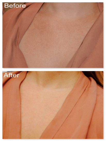 """I wish you could feel texture through pictures!! The texture is totally different in the """"After"""" picture. Sorry the lighting is slightly darker in the top pic."""