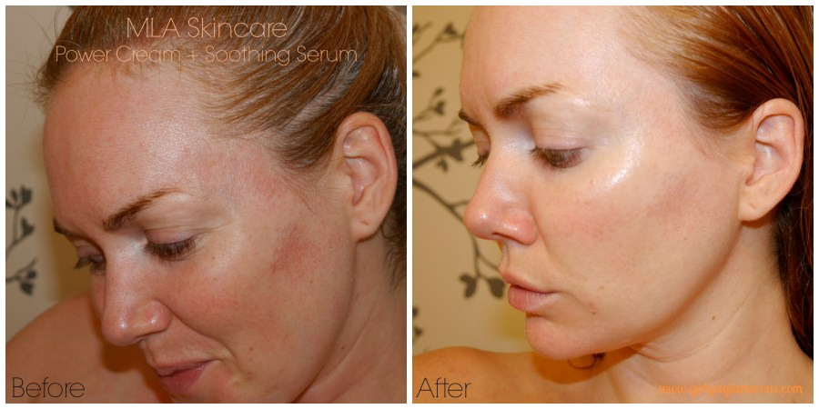 mla-dr-lee-amerianbest-top-dermatologist-skincare-for-sensitive-skin-anti-aging-product-review-demo-before-after-beauty-blog-los-angeles.jpeg