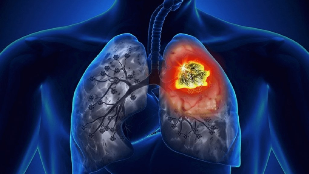 HRCTs For Covid Detecting Early-Stage Lung Cancer